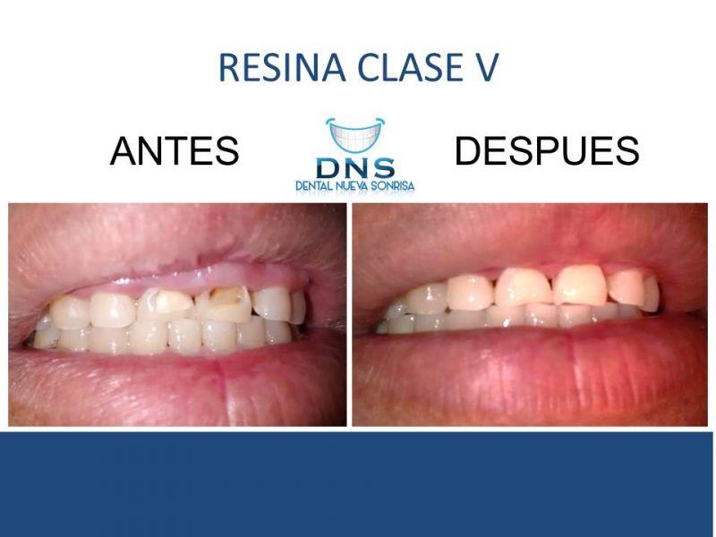 Dental Nueva Sonrisa