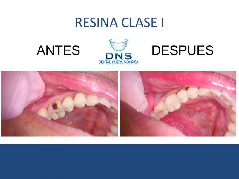 Dental Zihuatanejo