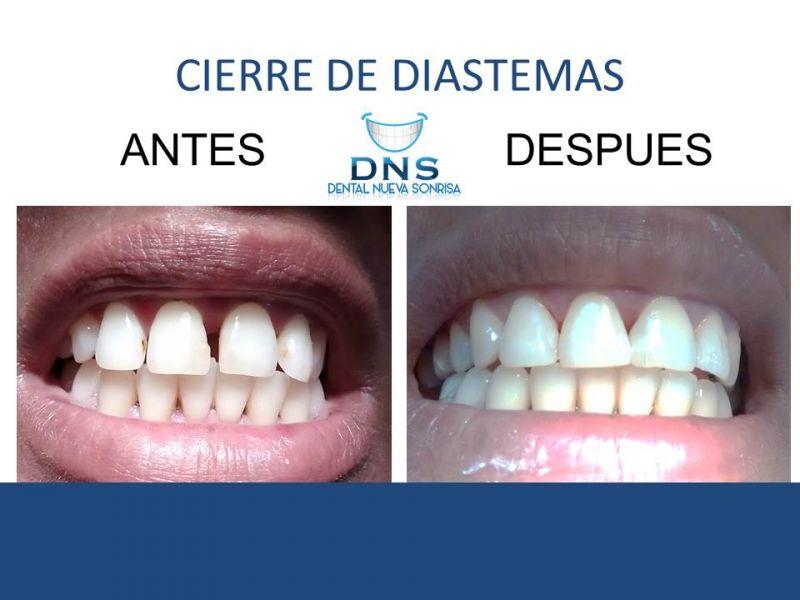 Servicio Dental Zihuatanejo
