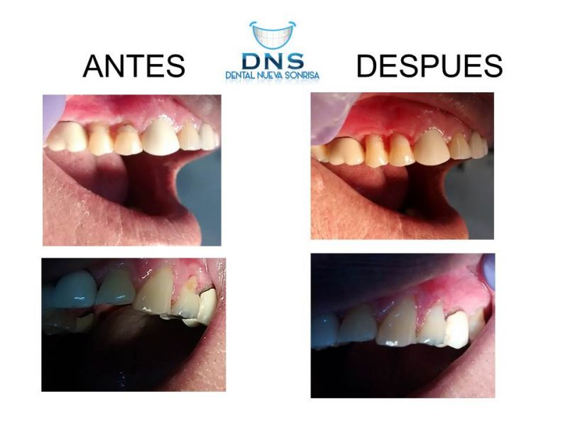Tratamiento Dental Zihua