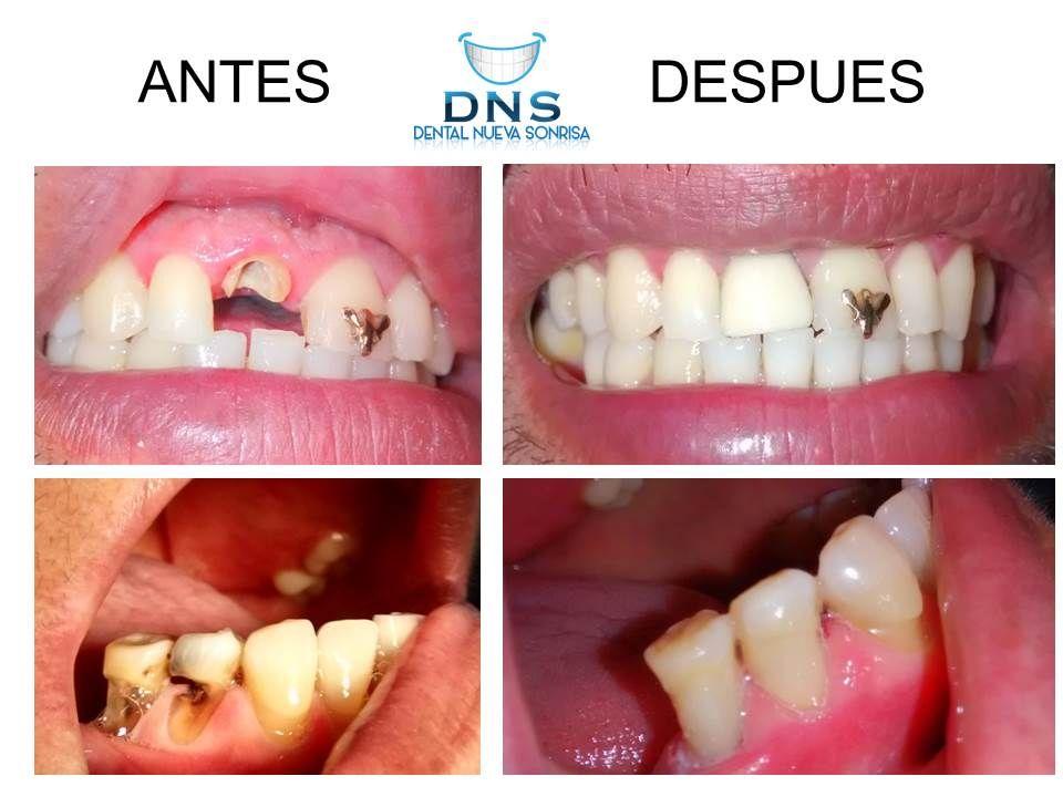 Dentista Zihuatanejo
