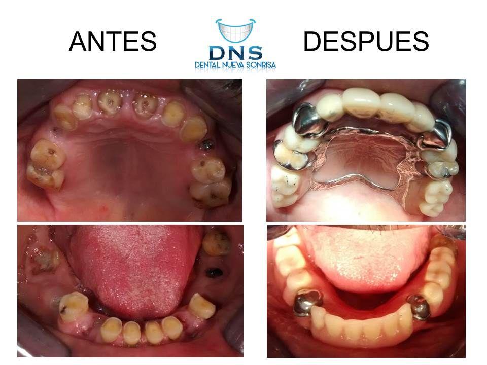 Tratamiento Dentista